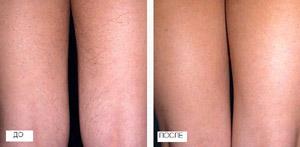 До и после эпиляции александритовым лазером