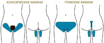 Схема классического и глубокого бикини