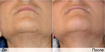 Фото до и после лазерной эпиляции
