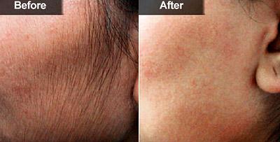 До и после эпиляции диодным лазером