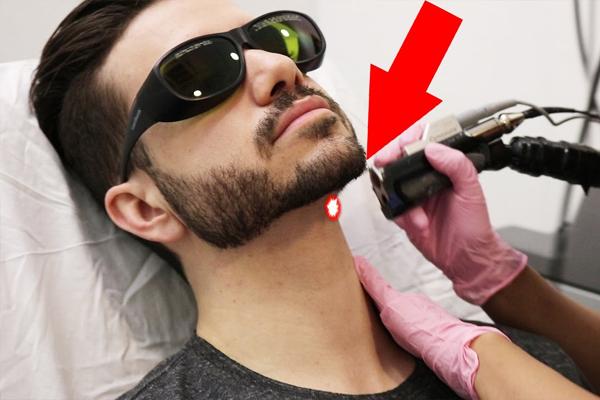 Лазерный дизайн бороды