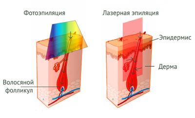 Отличия лазерной и фотоэпиляции